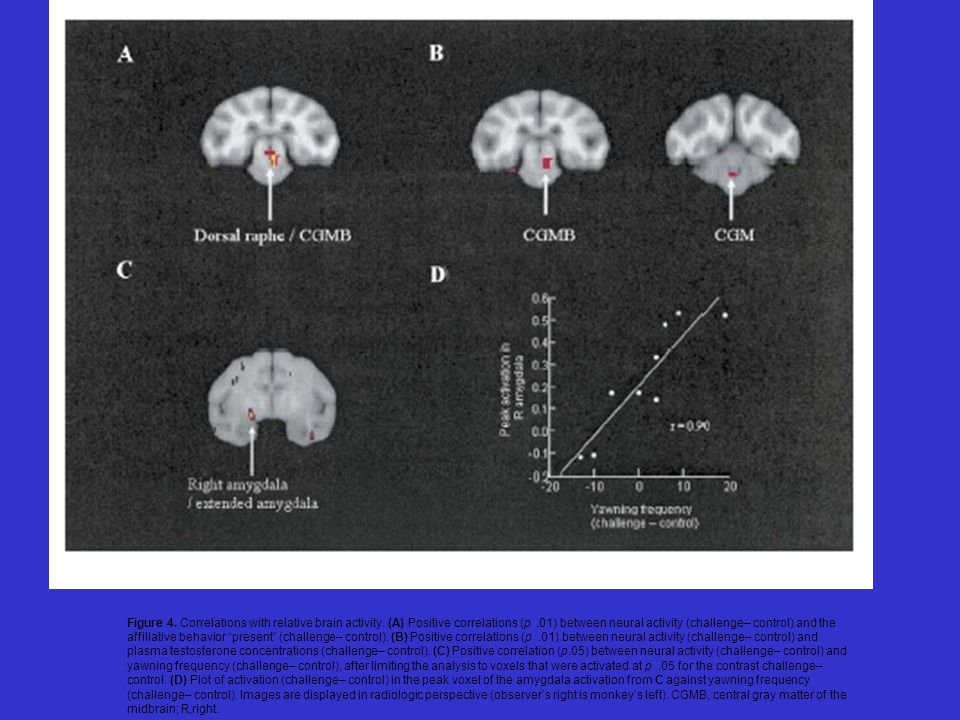 Figure 4. Correlations with relative brain activity. (A) Positive correlations (p.01) between neural activity (challenge– control) and the affiliative
