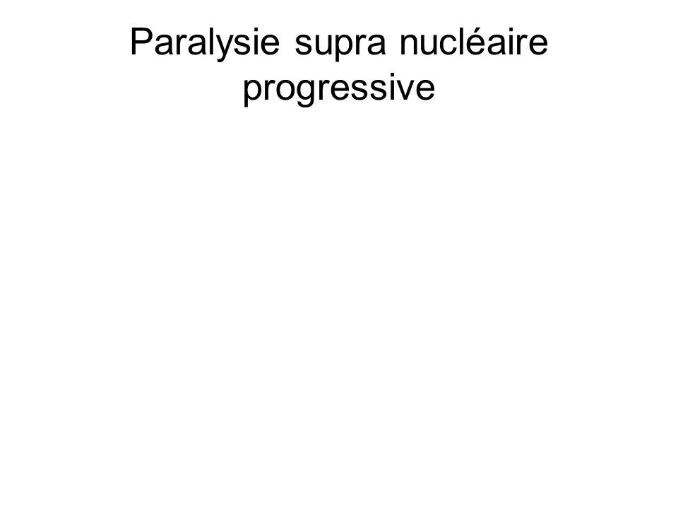 Paralysie supra nucléaire progressive