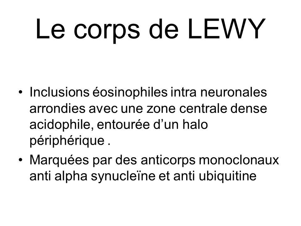 Le corps de LEWY Inclusions éosinophiles intra neuronales arrondies avec une zone centrale dense acidophile, entourée dun halo périphérique. Marquées