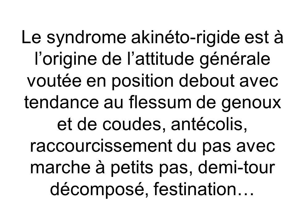Le syndrome akinéto-rigide est à lorigine de lattitude générale voutée en position debout avec tendance au flessum de genoux et de coudes, antécolis,