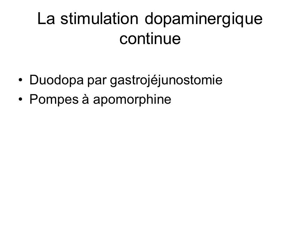 La stimulation dopaminergique continue Duodopa par gastrojéjunostomie Pompes à apomorphine