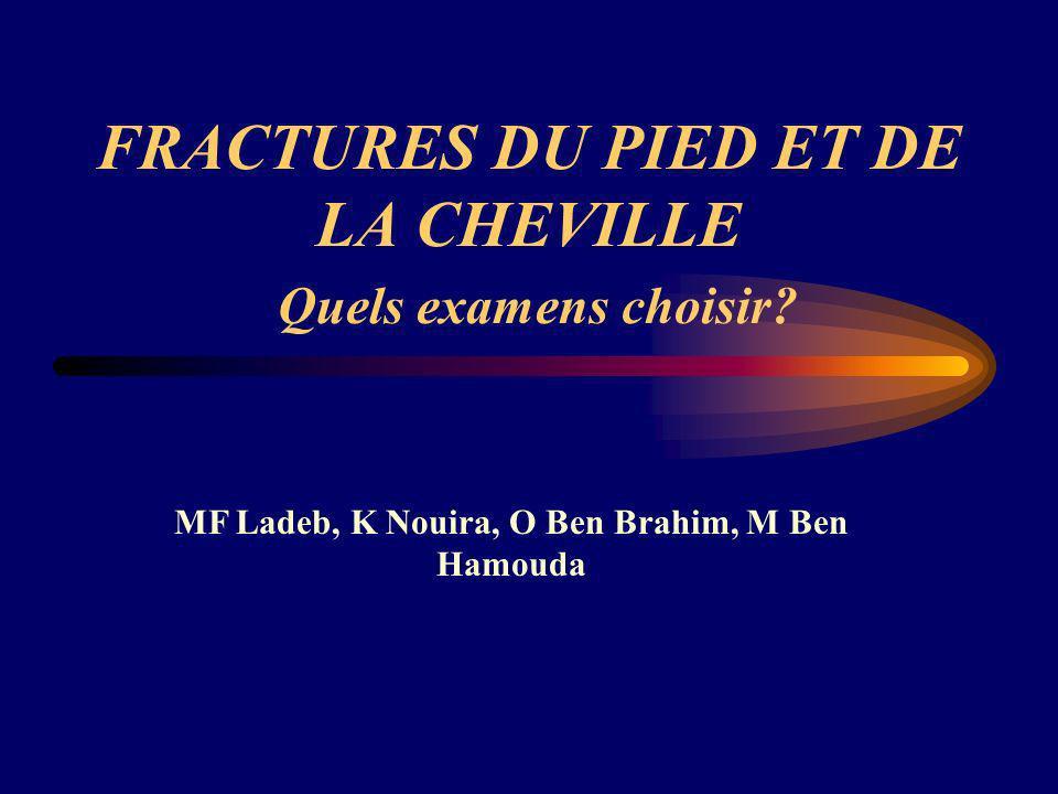 FRACTURES DU PIED ET DE LA CHEVILLE Quels examens choisir? MF Ladeb, K Nouira, O Ben Brahim, M Ben Hamouda