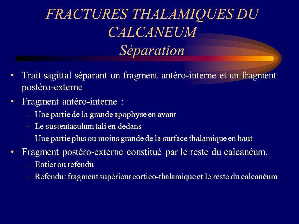 FRACTURES THALAMIQUES DU CALCANEUM Séparation Trait sagittal séparant un fragment antéro-interne et un fragment postéro-externe Fragment antéro-intern