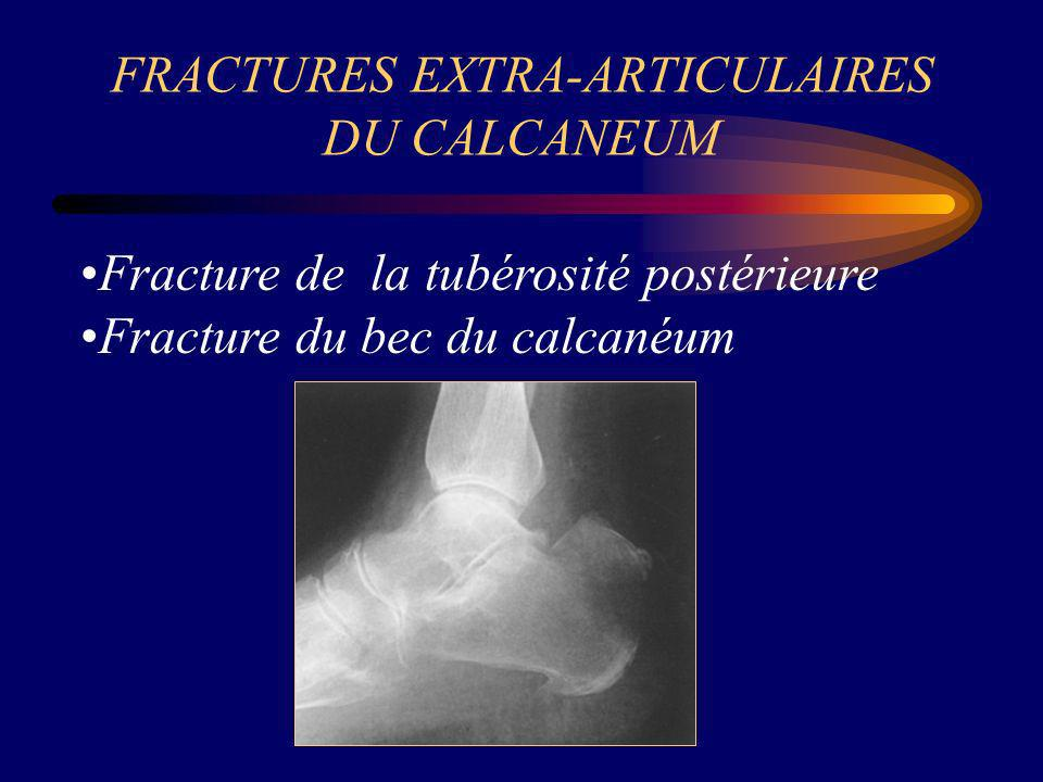 FRACTURES EXTRA-ARTICULAIRES DU CALCANEUM Fracture de la tubérosité postérieure Fracture du bec du calcanéum
