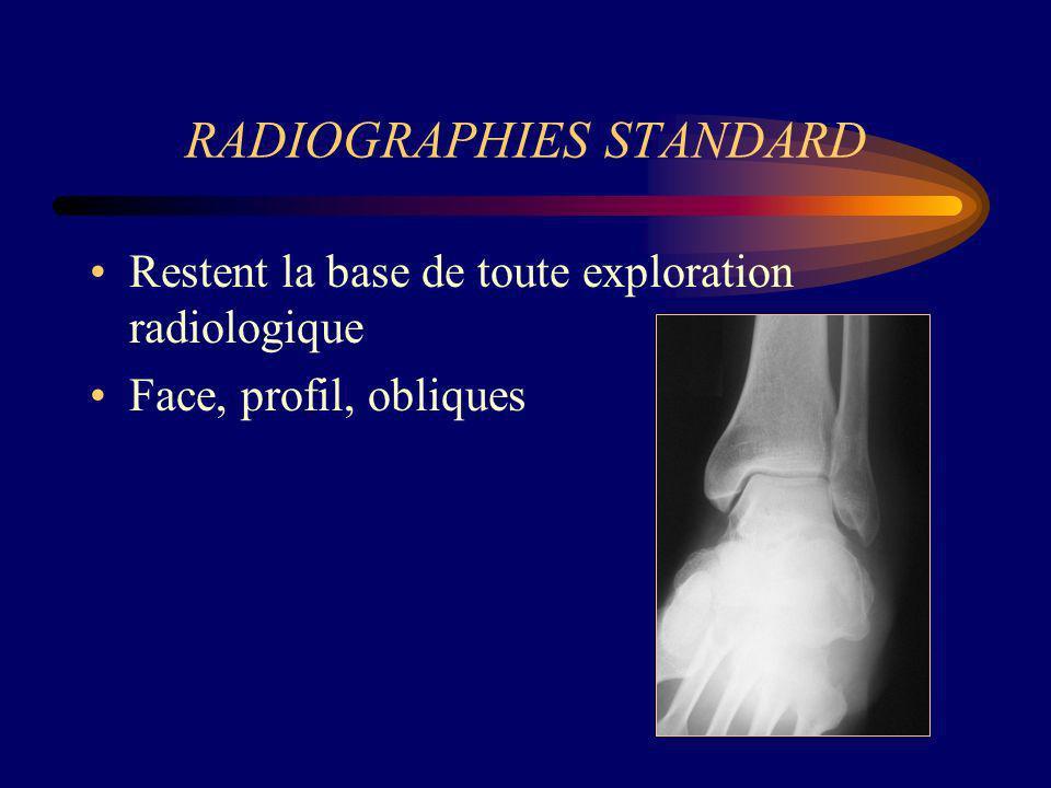 FRACTURES DE FATIGUE Radiographies standard Habituellement normales au début de lévolution.