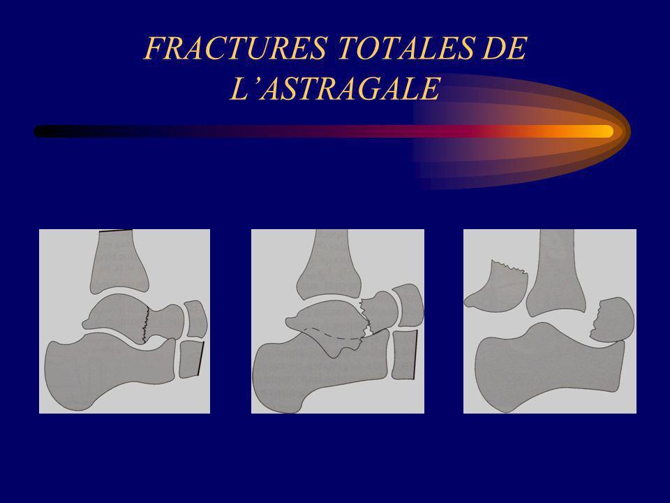 FRACTURES TOTALES DE LASTRAGALE