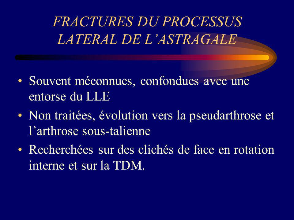 FRACTURES DU PROCESSUS LATERAL DE LASTRAGALE Souvent méconnues, confondues avec une entorse du LLE Non traitées, évolution vers la pseudarthrose et la