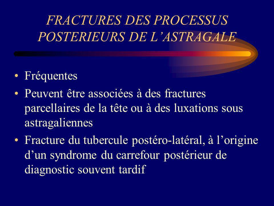 FRACTURES DES PROCESSUS POSTERIEURS DE LASTRAGALE Fréquentes Peuvent être associées à des fractures parcellaires de la tête ou à des luxations sous as