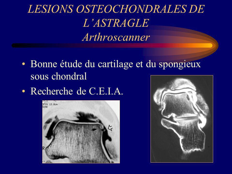 LESIONS OSTEOCHONDRALES DE LASTRAGLE Arthroscanner Bonne étude du cartilage et du spongieux sous chondral Recherche de C.E.I.A.