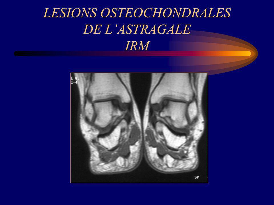 LESIONS OSTEOCHONDRALES DE LASTRAGALE IRM