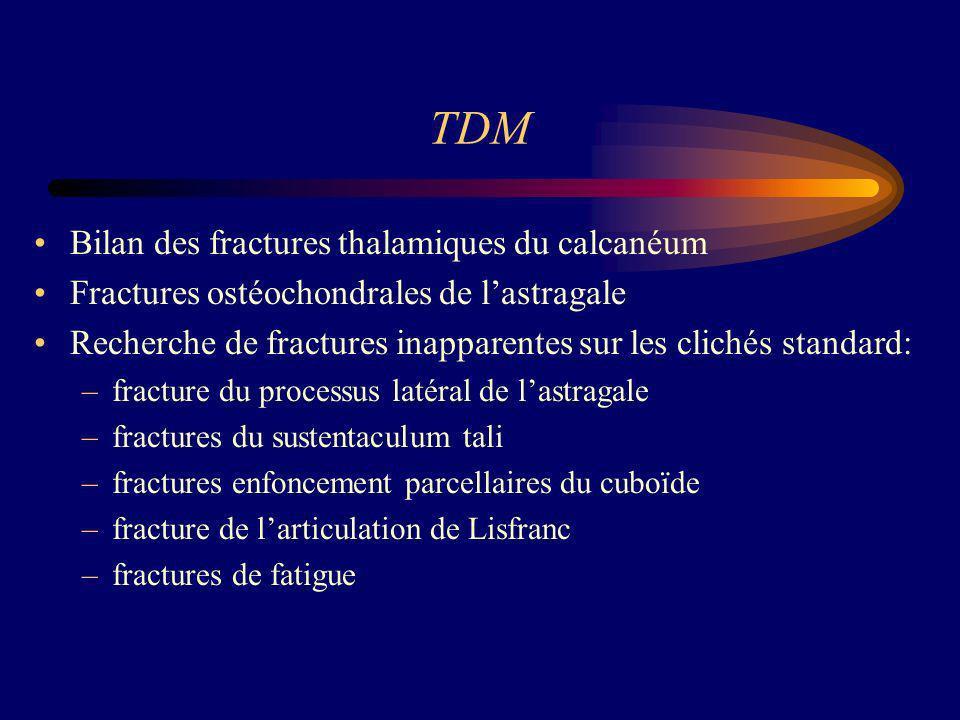 TDM Bilan des fractures thalamiques du calcanéum Fractures ostéochondrales de lastragale Recherche de fractures inapparentes sur les clichés standard: