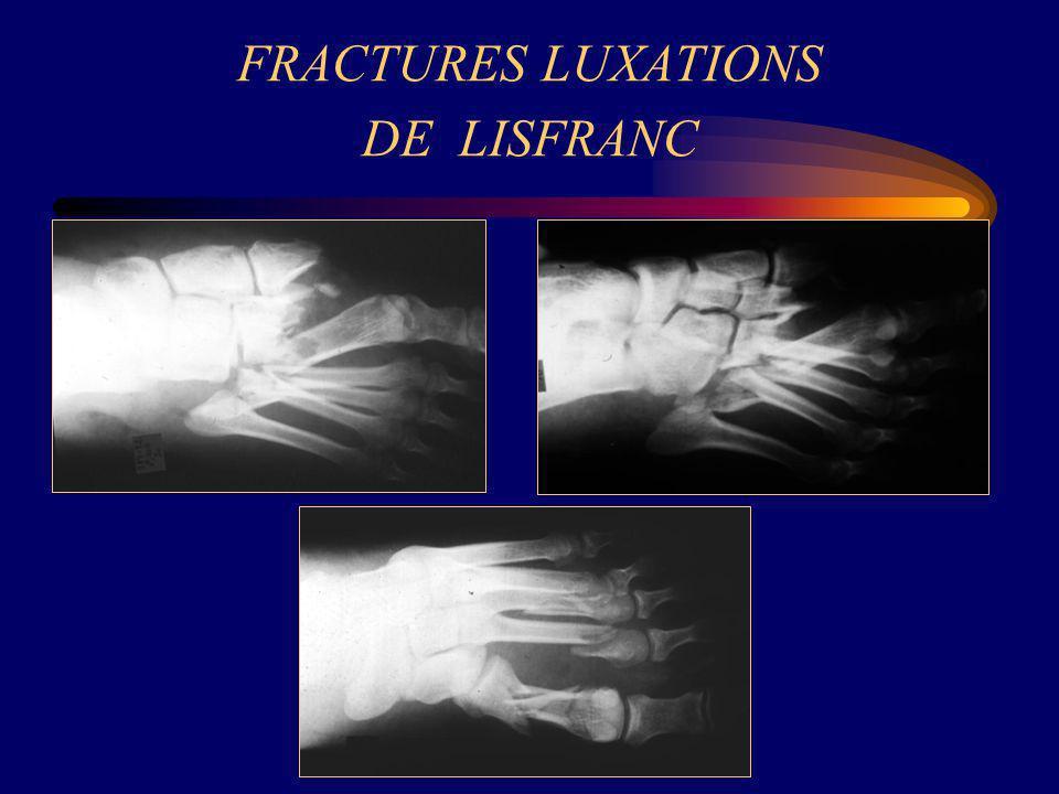 FRACTURES LUXATIONS DE LISFRANC
