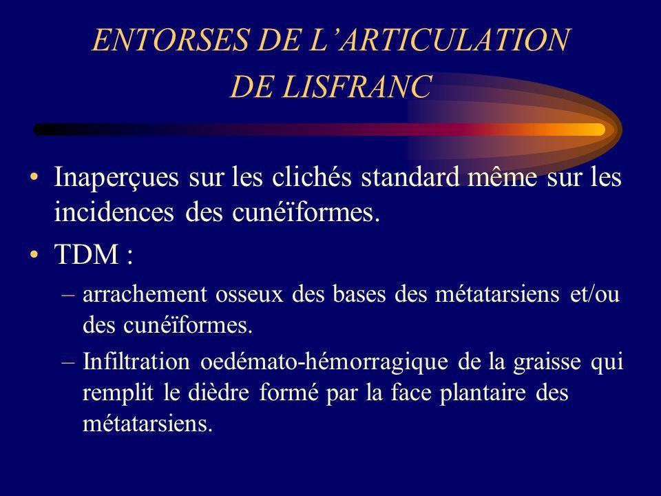 ENTORSES DE LARTICULATION DE LISFRANC Inaperçues sur les clichés standard même sur les incidences des cunéïformes. TDM : –arrachement osseux des bases