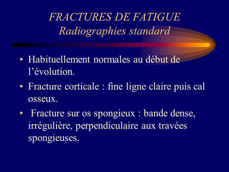 FRACTURES DE FATIGUE Radiographies standard Habituellement normales au début de lévolution. Fracture corticale : fine ligne claire puis cal osseux. Fr