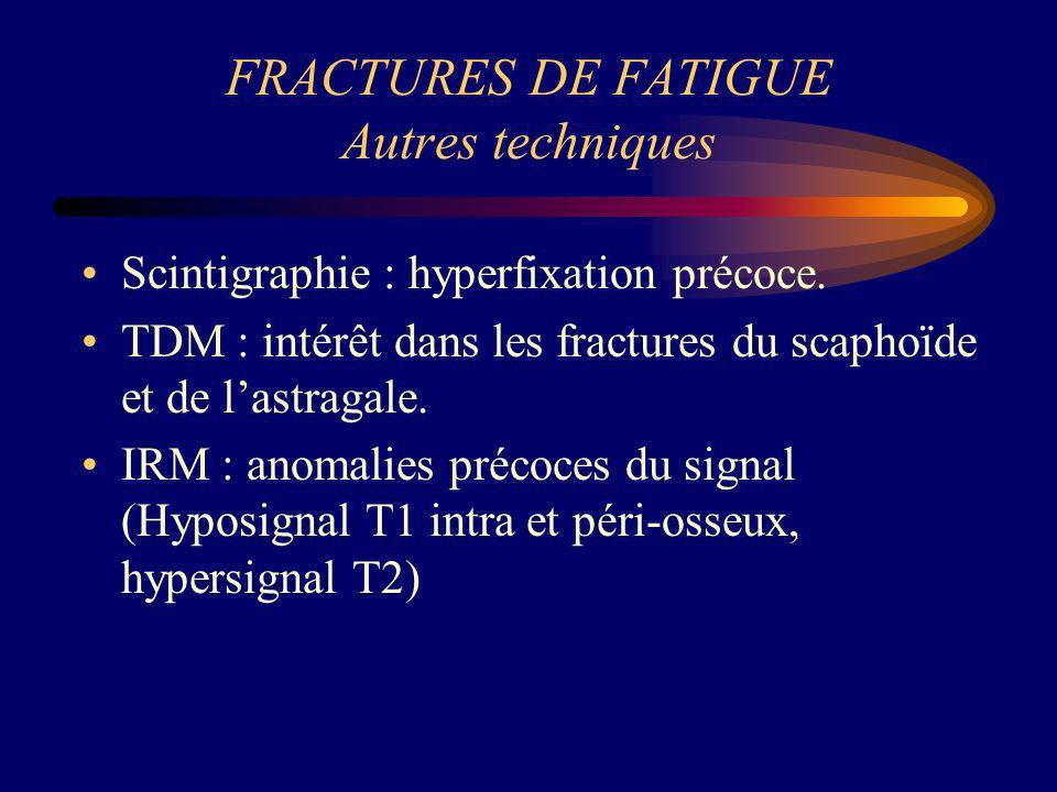 FRACTURES DE FATIGUE Autres techniques Scintigraphie : hyperfixation précoce. TDM : intérêt dans les fractures du scaphoïde et de lastragale. IRM : an