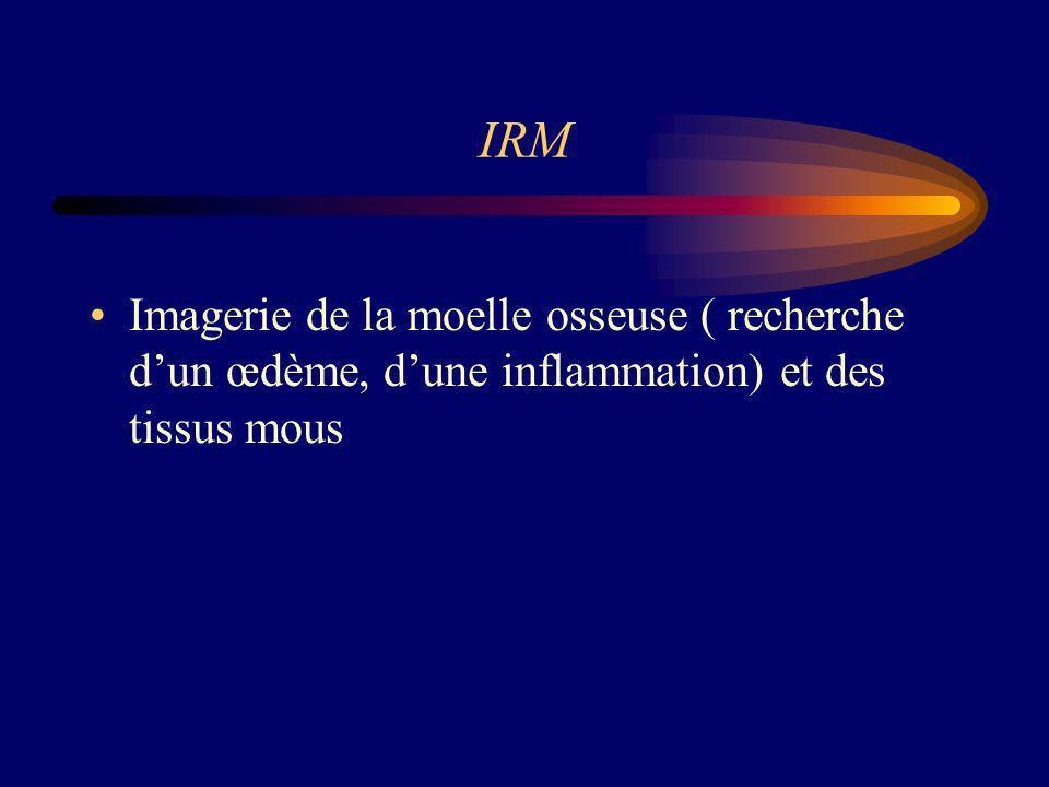 IRM Imagerie de la moelle osseuse ( recherche dun œdème, dune inflammation) et des tissus mous