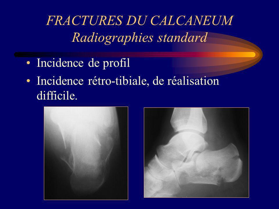 FRACTURES DU CALCANEUM Radiographies standard Incidence de profil Incidence rétro-tibiale, de réalisation difficile.