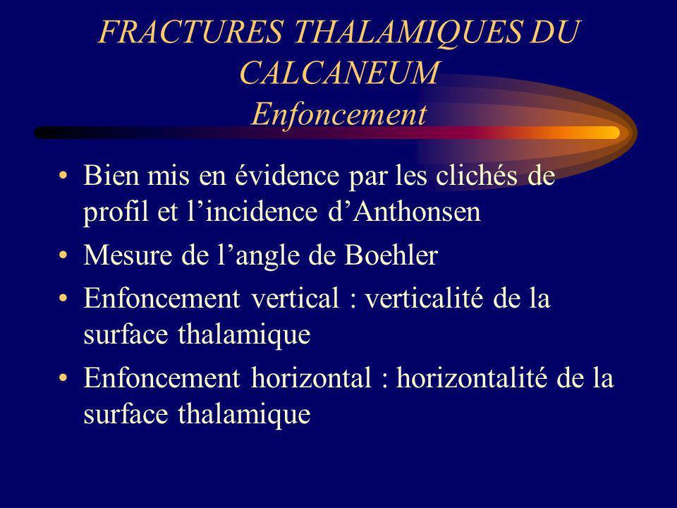 FRACTURES THALAMIQUES DU CALCANEUM Enfoncement Bien mis en évidence par les clichés de profil et lincidence dAnthonsen Mesure de langle de Boehler Enf
