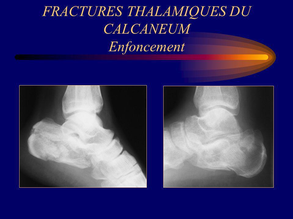 FRACTURES THALAMIQUES DU CALCANEUM Enfoncement