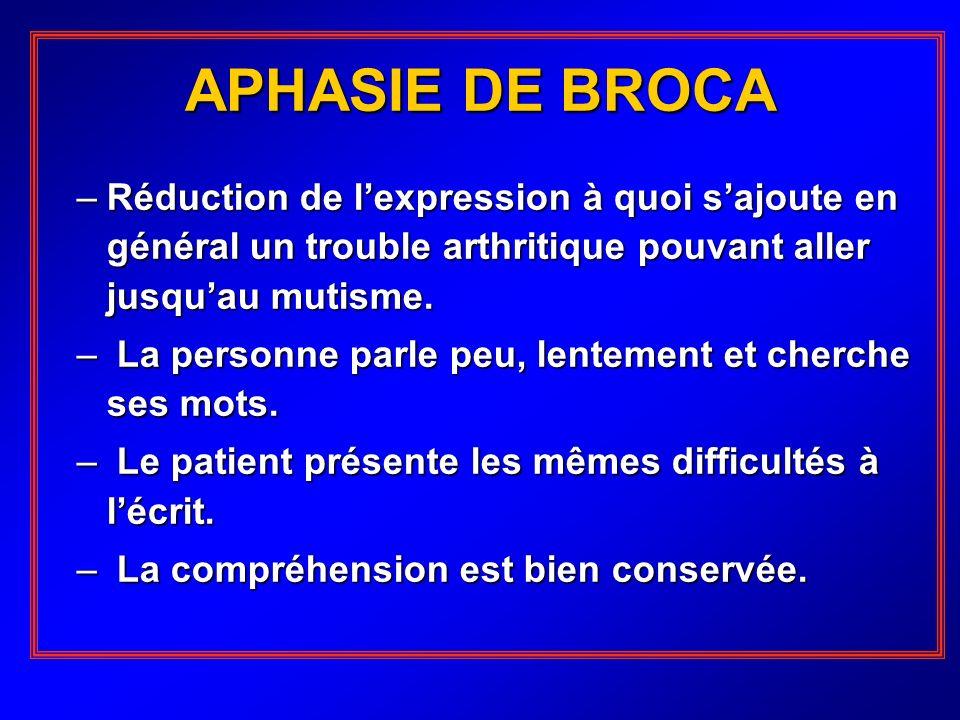 APHASIE DE BROCA –Réduction de lexpression à quoi sajoute en général un trouble arthritique pouvant aller jusquau mutisme. – La personne parle peu, le