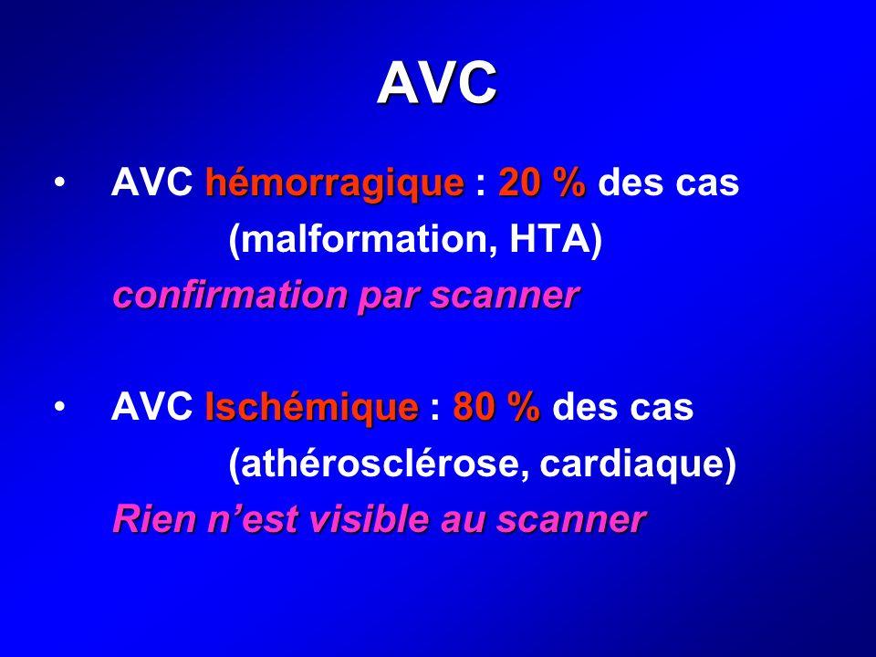 AVC hémorragique20 %AVC hémorragique : 20 % des cas (malformation, HTA) confirmation par scanner Ischémique80 %AVC Ischémique : 80 % des cas (athérosc