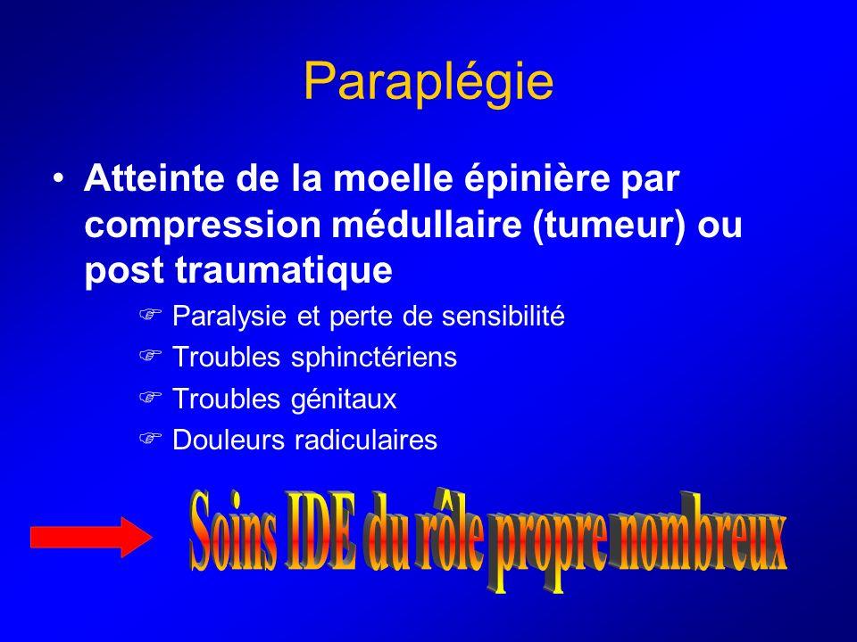 Paraplégie Atteinte de la moelle épinière par compression médullaire (tumeur) ou post traumatique Paralysie et perte de sensibilité Troubles sphinctér