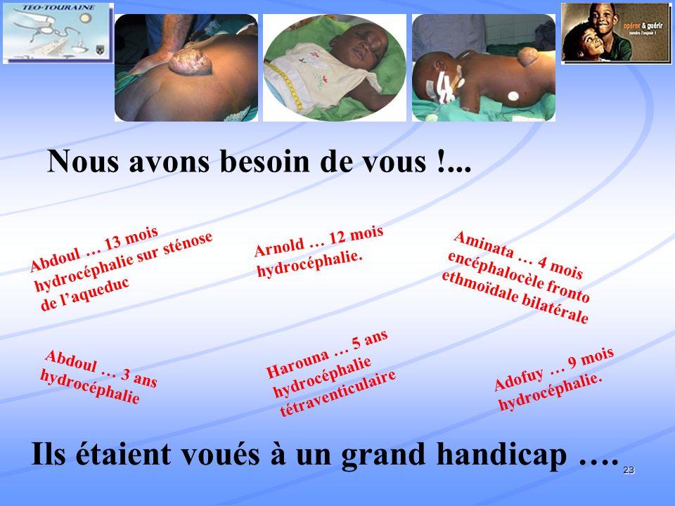 23 Abdoul … 13 mois hydrocéphalie sur sténose de laqueduc Arnold … 12 mois hydrocéphalie.