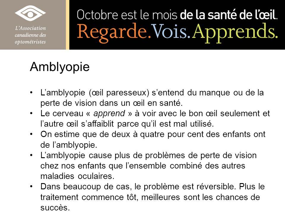 Lamblyopie (œil paresseux) sentend du manque ou de la perte de vision dans un œil en santé. Le cerveau « apprend » à voir avec le bon œil seulement et