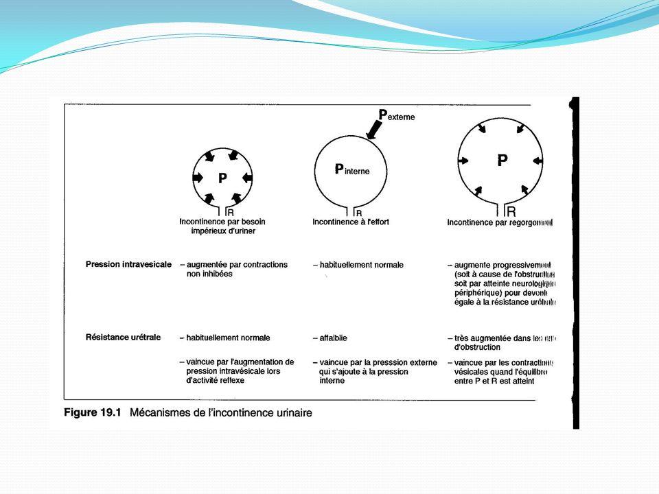 Cas Clinique #1 Analyse durine N Bladder Scan N Cystoscopie? Bilan base?