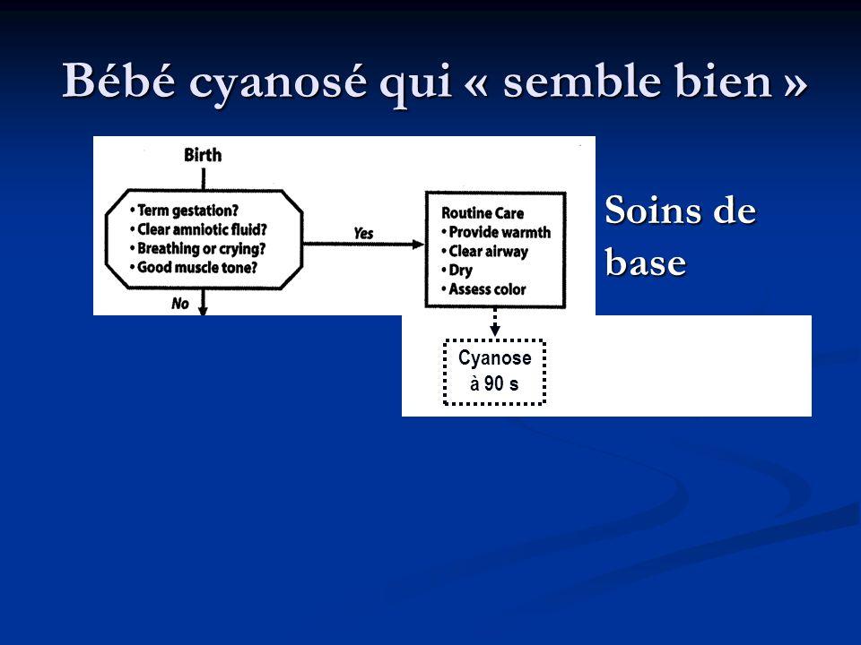 Soins de base Cyanose à 90 s Bébé cyanosé qui « semble bien »