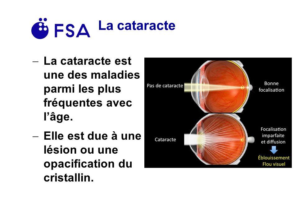 La cataracte La cataracte est une des maladies parmi les plus fréquentes avec lâge.