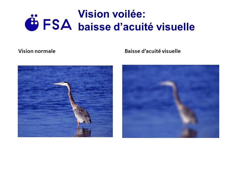 Vision voilée: baisse dacuité visuelle Vision normaleBaisse dacuité visuelle