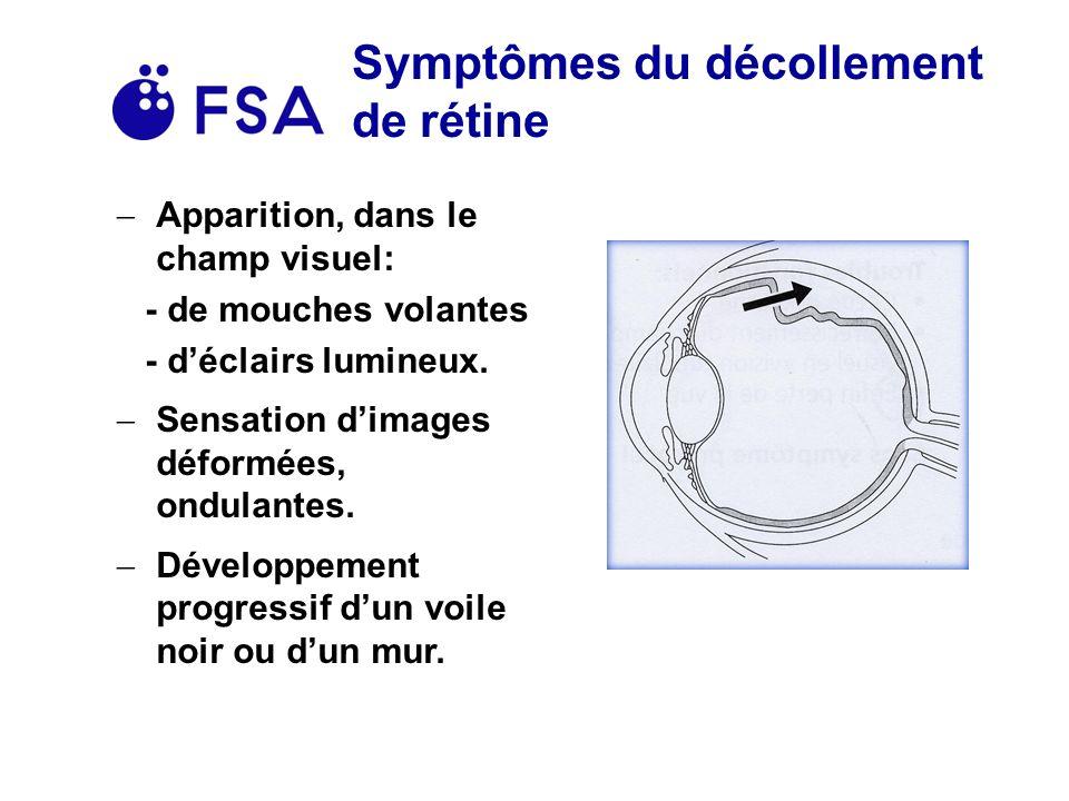 Symptômes du décollement de rétine Apparition, dans le champ visuel: - de mouches volantes - déclairs lumineux.