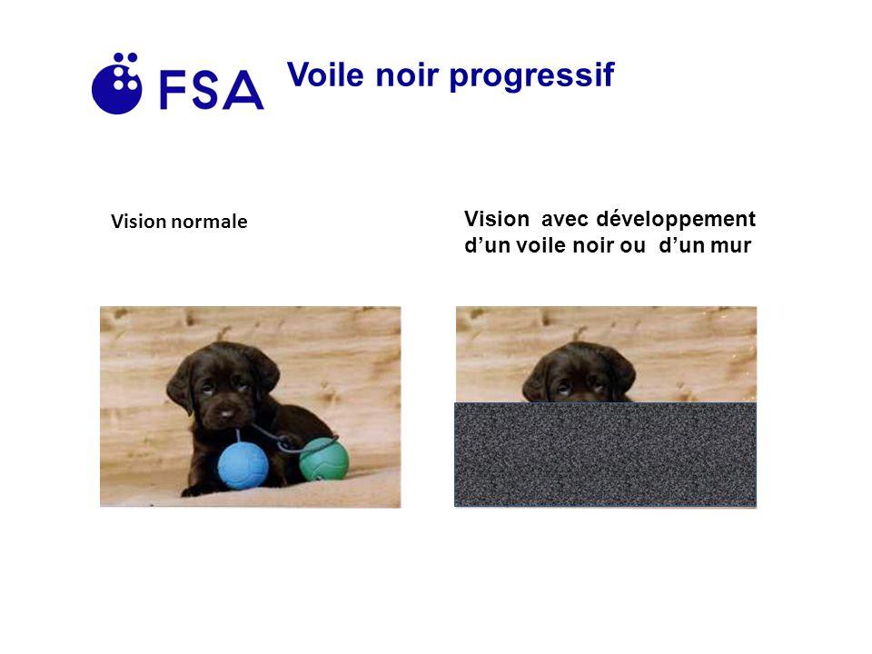 Voile noir progressif Vision normale Vision avec développement dun voile noir ou dun mur