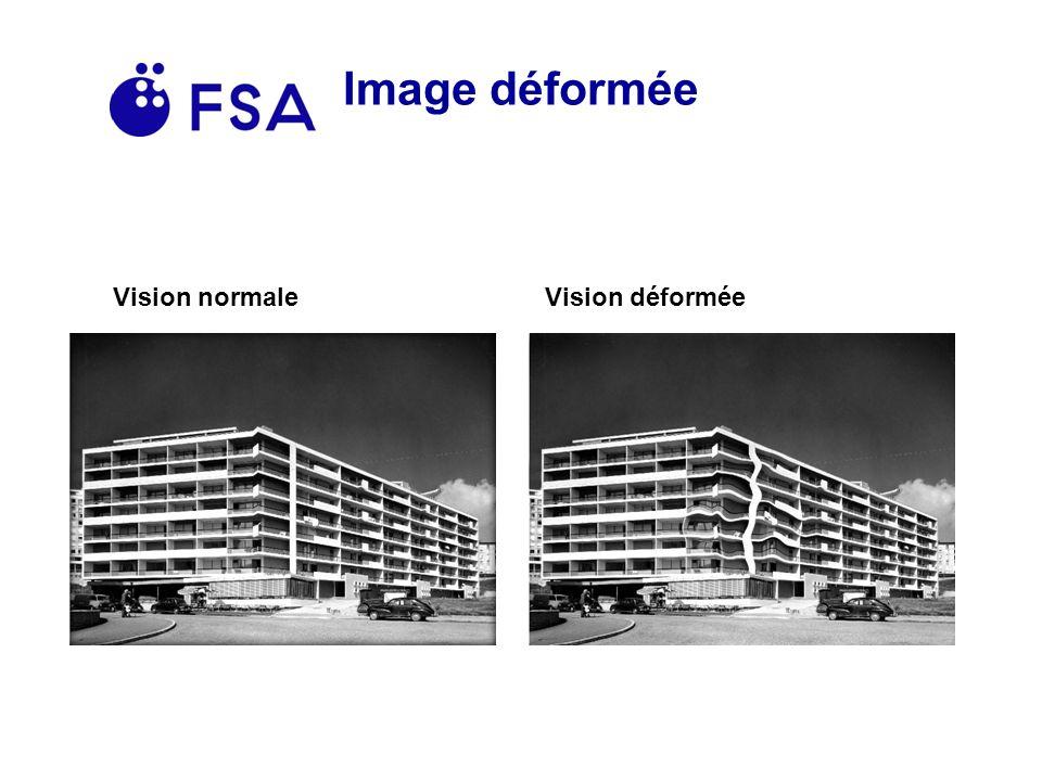 Image déformée Vision normaleVision déformée