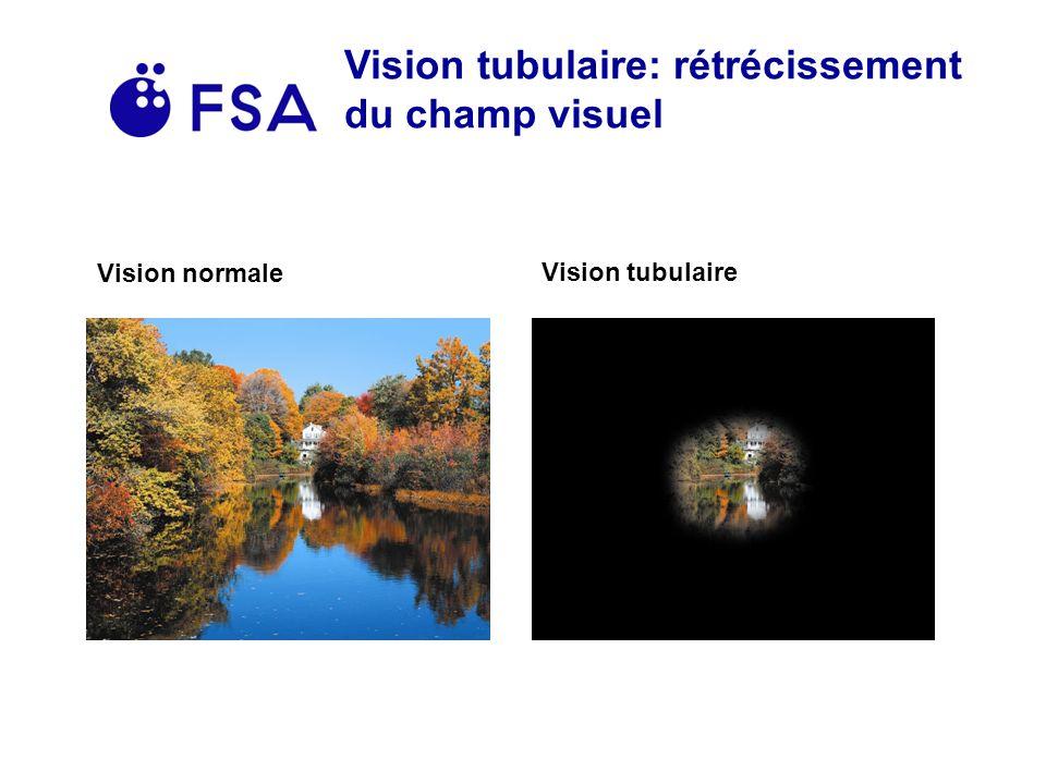 Vision tubulaire: rétrécissement du champ visuel Vision normale Vision tubulaire