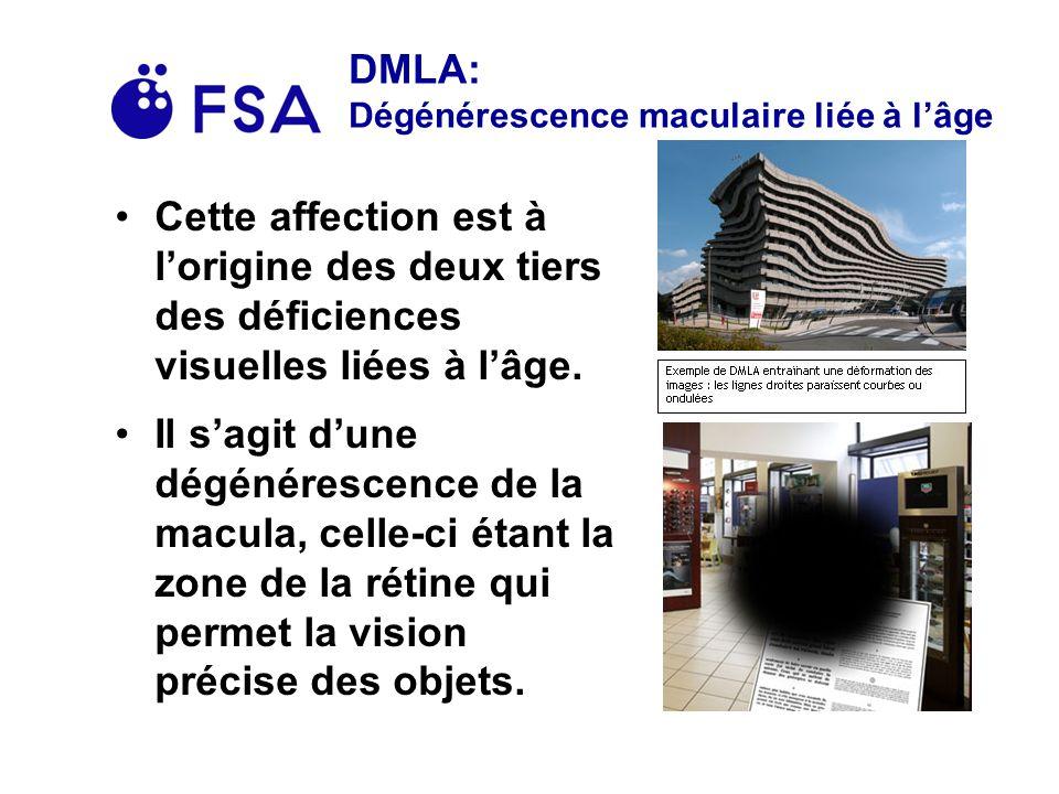 DMLA: Dégénérescence maculaire liée à lâge Cette affection est à lorigine des deux tiers des déficiences visuelles liées à lâge.