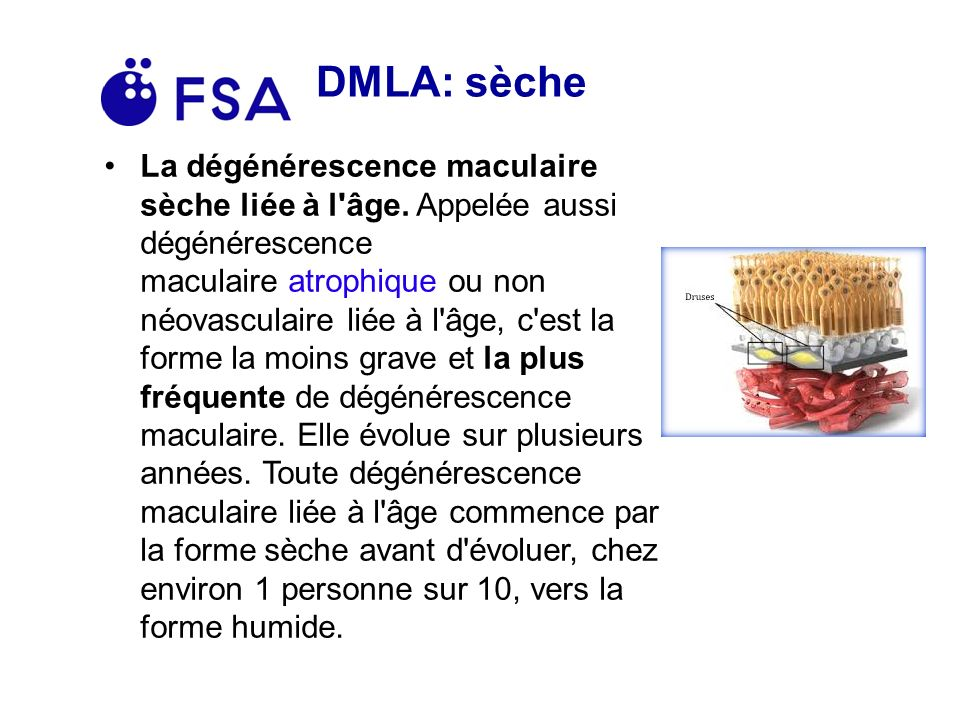 DMLA: sèche La dégénérescence maculaire sèche liée à l âge.