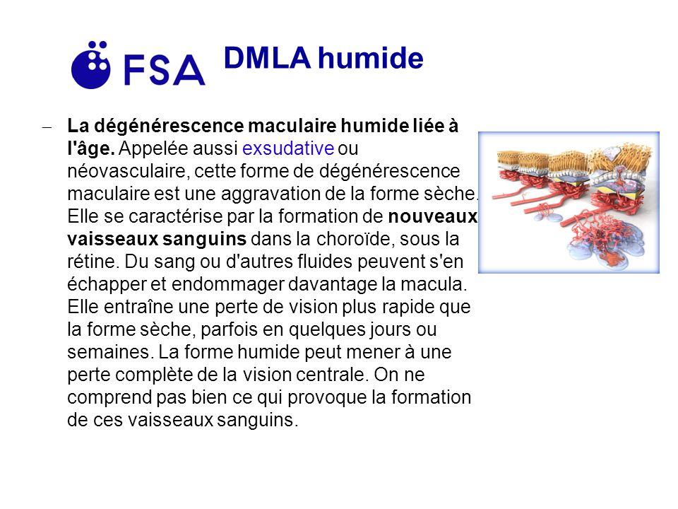 DMLA humide La dégénérescence maculaire humide liée à l âge.