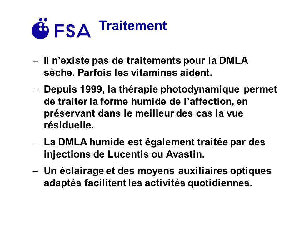 Traitement Il nexiste pas de traitements pour la DMLA sèche.
