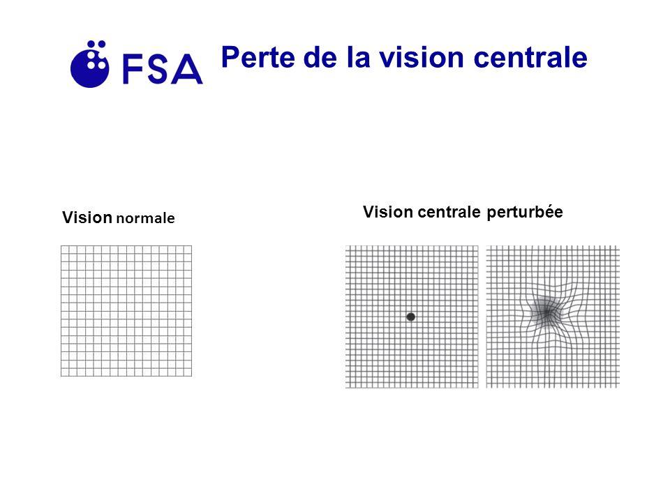 Perte de la vision centrale Vision normale Vision centrale perturbée