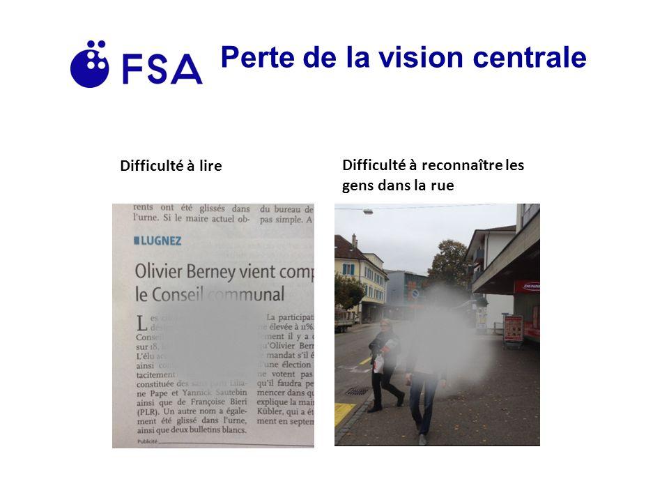 Perte de la vision centrale Difficulté à lire Difficulté à reconnaître les gens dans la rue