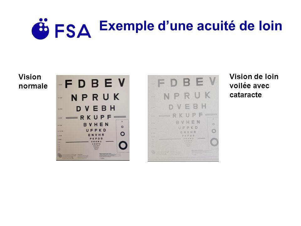 Exemple dune acuité de loin Vision normale Vision de loin voilée avec cataracte