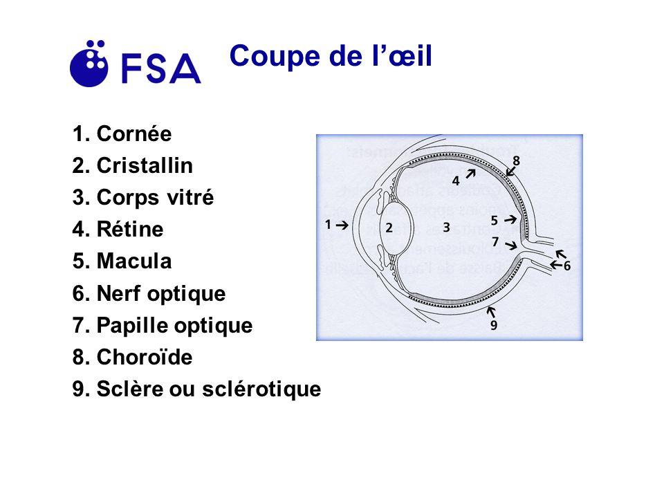Exemples de maladies de lœil Cataracte Décollement de rétine Glaucome Dégénérescence maculaire liée à lâge