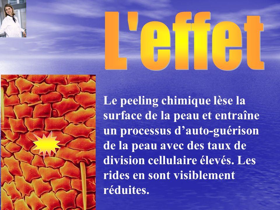 Le peeling chimique lèse la surface de la peau et entraîne un processus dauto-guérison de la peau avec des taux de division cellulaire élevés. Les rid
