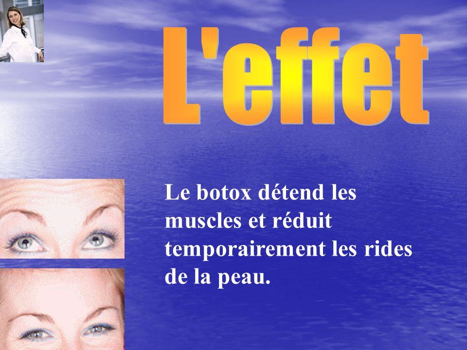 Le botox détend les muscles et réduit temporairement les rides de la peau.