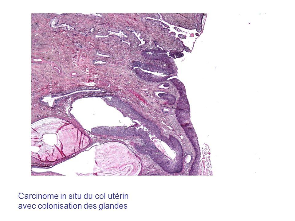 Carcinome in situ du col utérin avec colonisation des glandes