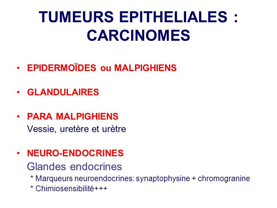 TUMEURS EPITHELIALES : CARCINOMES EPIDERMOÏDES ou MALPIGHIENS GLANDULAIRES PARA MALPIGHIENS Vessie, uretère et urètre NEURO-ENDOCRINES Glandes endocri
