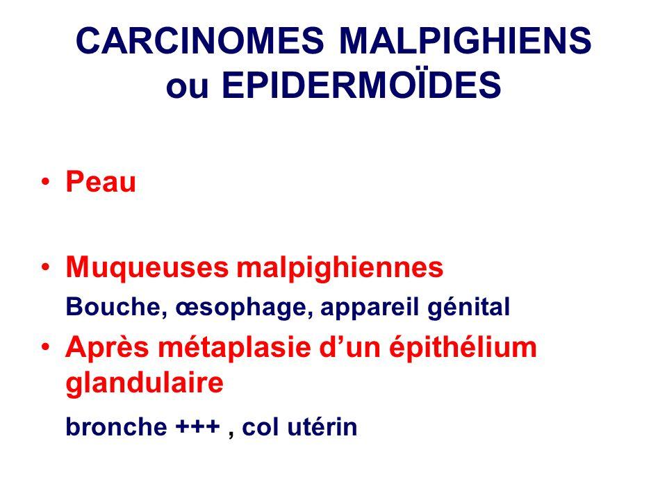 CARCINOMES MALPIGHIENS ou EPIDERMOÏDES Peau Muqueuses malpighiennes Bouche, œsophage, appareil génital Après métaplasie dun épithélium glandulaire bro
