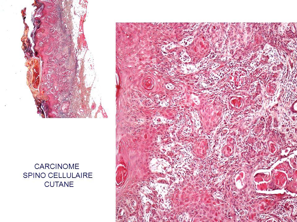 CARCINOME SPINO CELLULAIRE CUTANE